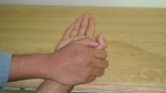 median-nerve-examination-upper-limb-test16