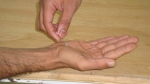 median-nerve-examination-upper-limb-test20-sensation