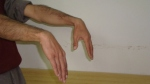 median-nerve-examination-upper-limb-test33