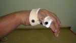 upper-limb-orthosis06