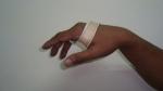 upper-limb-orthosis07