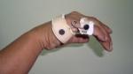 upper-limb-orthosis08