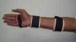 upper-limb-orthosis10