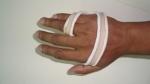 upper-limb-orthosis13