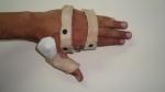 upper-limb-orthosis16