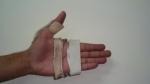 upper-limb-orthosis17