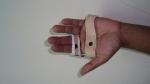 upper-limb-orthosis20