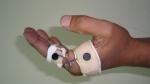 upper-limb-orthosis22