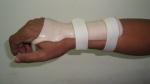 upper-limb-orthosis24
