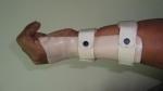 upper-limb-orthosis26