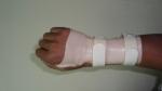 upper-limb-orthosis27