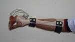 upper-limb-orthosis54