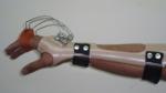 upper-limb-orthosis55